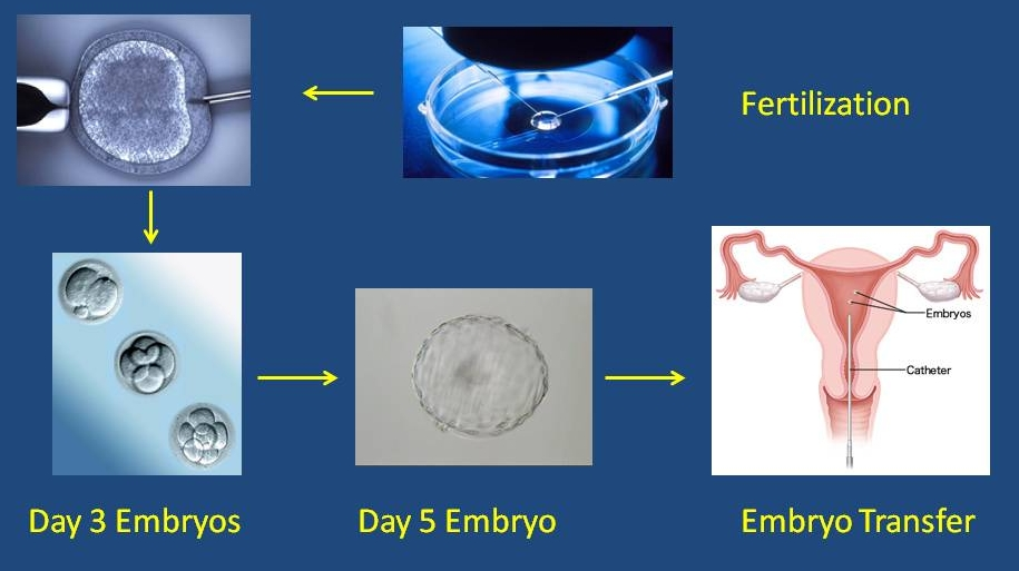 THE TENSION BETWEEN INFERTILITY AND IN-VITRO FERTILIZATION TODAY: A MORAL INVESTIGATION